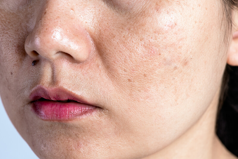 pigmentvlekken verminderen