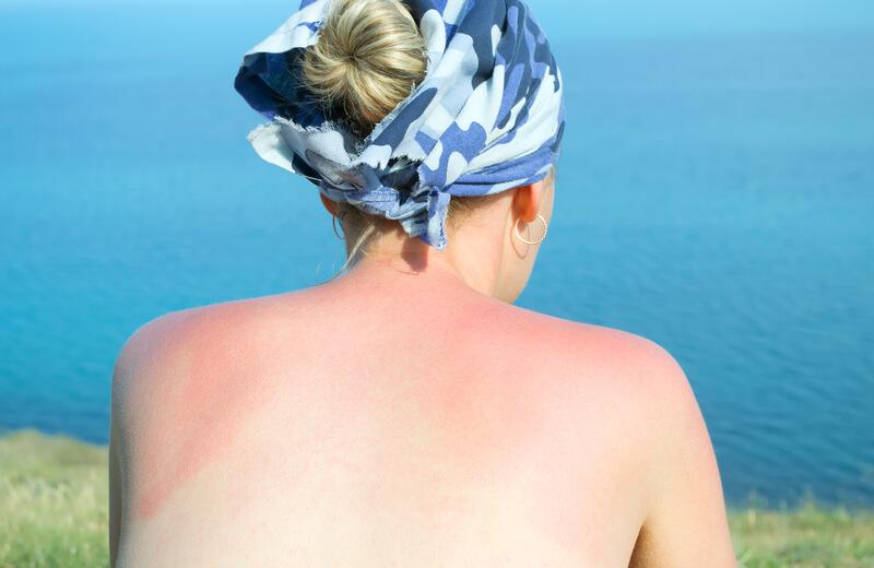 beschermen met zonnebandcreme